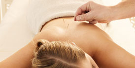 Acupuncture Clinic near me Fremantle