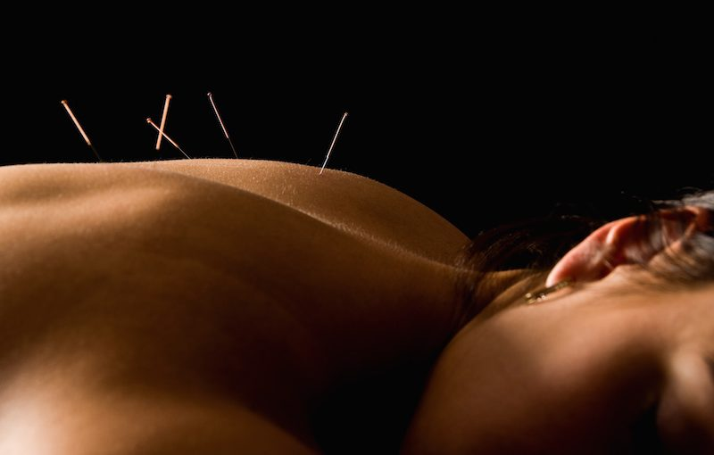 Acupuncture clinic in Spearwood, WA