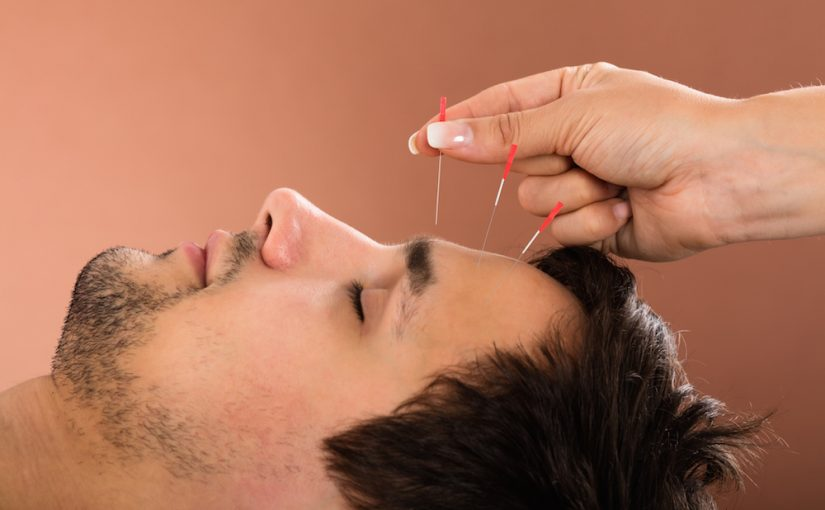 Acupuncture, Fremantle, Spearwood, Bibra Lake