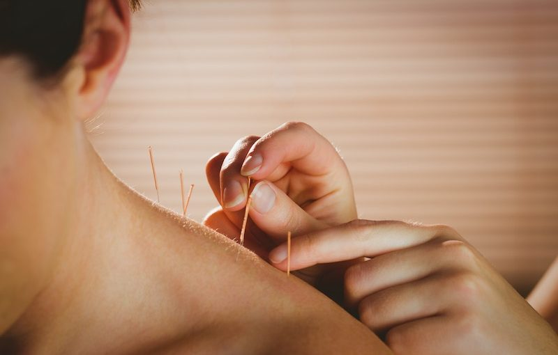Acupuncture and other alternative health treatments.