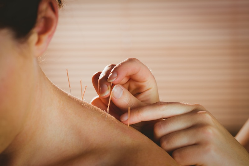 Acupuncture Clinic Coogee Acupuncture Clinic Bibra Lake